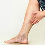 Where Can I Buy Compression Stockings for Varicose Veins?